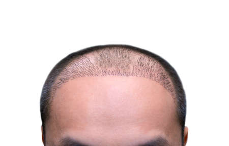 Top view of a man's head with hair transplant surgery with a receding hair line. -  After Bald head of hair loss treatment.