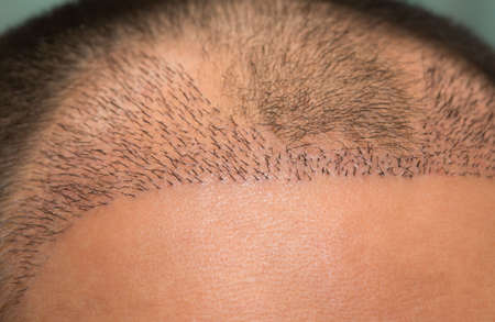 Close up top view of a man's head with hair transplant surgery with a receding hair line. -  After Bald head of hair loss treatment. 版權商用圖片