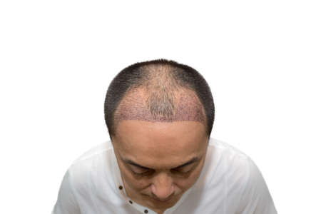 Close up top view of a man's head with hair transplant surgery with a receding hair line. After Bald head of hair loss treatment.