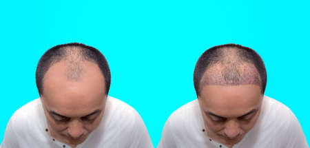 Close up top view of a man's head with hair transplant surgery with a receding hair line. before and after bald head of a man . After Bald head of hair loss treatment. 版權商用圖片