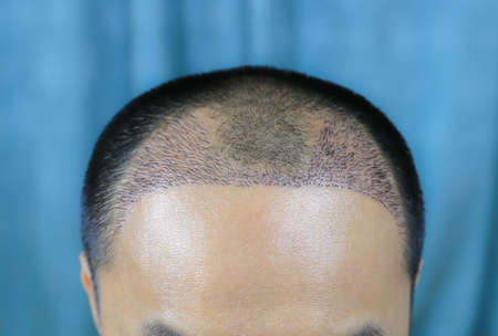 Close up top view of a man's head with hair transplant surgery with a receding hair line. - After Bald head of hair loss treatment.