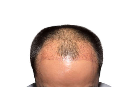Close up top view of a man's head with hair transplant surgery with a receding hair line isolated on White Background -  2 months after Bald head of hair loss treatment.