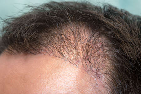 Close up top view of a man's head with hair transplant surgery with a receding hair line. -  5 months after Bald head of hair loss treatment.