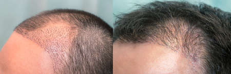 Close up top view of a man's head with hair transplant surgery with a receding hair line. -  1-5 months after Bald head of hair loss treatment.