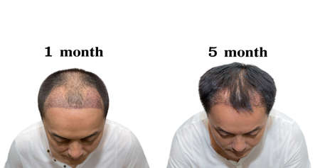 Hair transplantation surgery steps. Patient before and after the procedure. Male hair loss treatment with FUT, FUE method. Alopecia medical design for clinics and diagnostic centers.