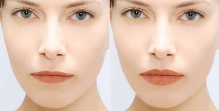 fill: woman fill lips - before and after Stock Photo