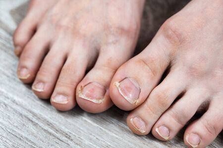 broken and ingrown ugly toenails of a sloppy girl. overgrown nails and dry skin with calluses. medical pedicure