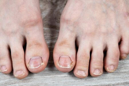 Close-up of big toes with ugly broken yellow nails and calluses. ingrown toenail. appeal to the surgeon. pedicure Reklamní fotografie