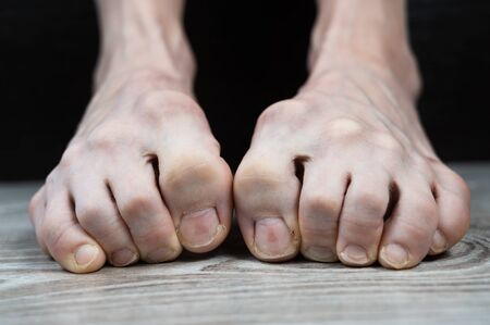 scary thin legs with sore tucked fingers from constriction by ingrown nails. medical pedicure. nail fungus Stock Photo