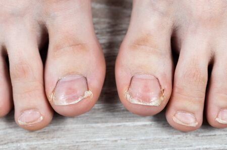 Close-up of big toes with ugly broken nails and calluses. ingrown toenail. discomfort at least. pedicure
