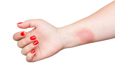 Burn on female hand with red nails isolated on white background