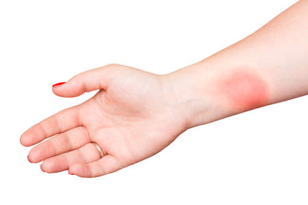 Burn on female hand with red nails isolated on white background Archivio Fotografico