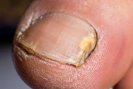 Fungus of nails on the big toe - dermatomycosis and onychomycosis, fungal infection macro photo.