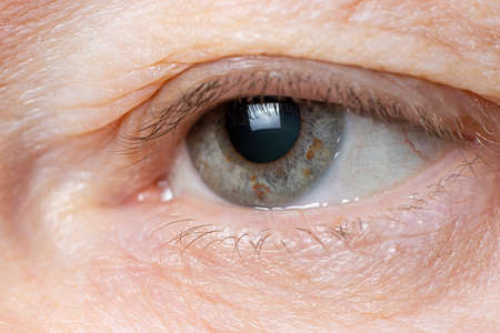Macro photo of the human eye - overhanging upper eyelid, omitted eyelid ptosis, tired look of the old man, insomnia