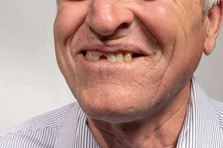 The toothless smile of an old European man on a gray background. Dentistry for pensioners, happy old age