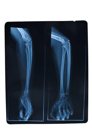Radiografía del antebrazo aislado sobre fondo blanco. Foto de archivo