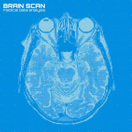 resonancia magnética: Vector el ejemplo azul abstracto del análisis de la tomografía de cerebro. Escaneo digital de rayos X del cerebro. Concepto de visualización de IRM de datos médicos. Software de asistencia sanitaria futurista HUD UI. Imagen impulsada por datos. Cabeza humana