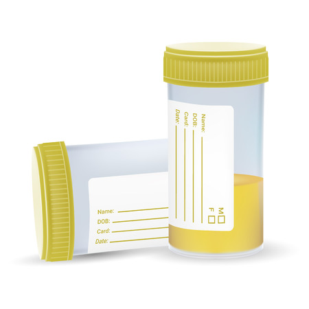 Urine Test In A Plastic Jar Isolated On A White Background. Realistic Vector Illustration. Medicine Stock Photo
