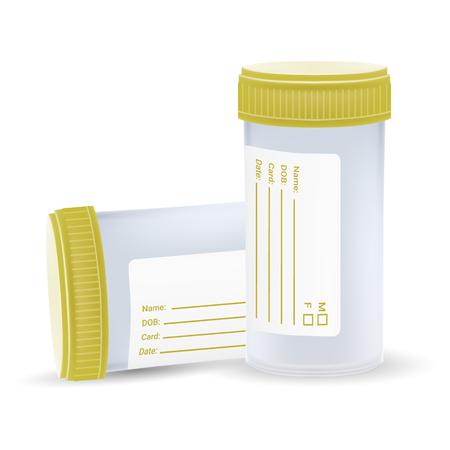 De steriele plastic container voor medische analyses geïsoleerd op een witte achtergrond. Realistische vectorillustratie. Geneeskunde