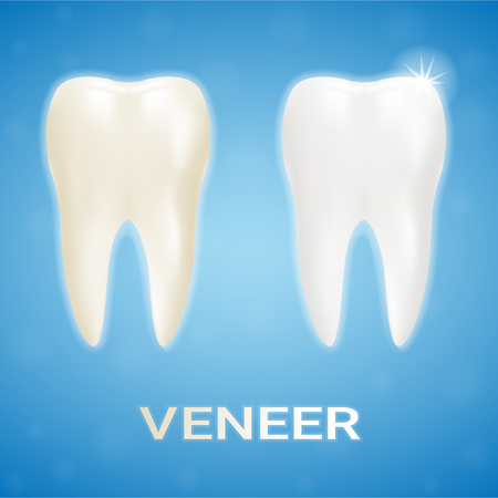 Tooth Veneer Whitening Dental Technician Isolated On A Background. Realistic Vector Illustration. Healthcare stomatology and cleaning professional teeth illustration Vettoriali