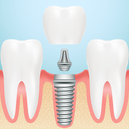 Realistic Healthy Teeth And Dental Implant. Installation Of Dental Implant With All Parts Crown, Abutment, Screw Isolated On A Background. Vector Illustration. Stomatology. Creative Medical Concept