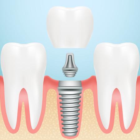Realistische gezonde tanden en tandheelkundig implantaat. Installatie van tandimplant met alle delen Kroon, abutment, schroef geïsoleerd op een achtergrond. Vector illustratie. Stomatology. Creatief medisch concept Stockfoto