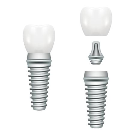 Realistische tandheelkundige implantaat structuur met alle delen Crown, abutment, schroef geïsoleerd op een witte achtergrond. Vector illustratie. Stomatology. Creatief medisch concept