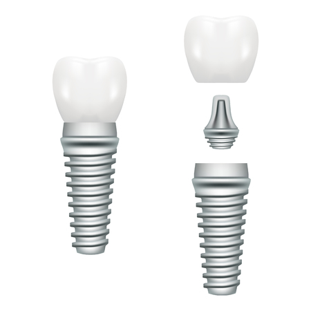 Realistic Dental Implant Structure With All Parts Crown, Abutment, Screw Isolated On A White Background. Vector Illustration. Stomatology. Creative Medical Concept