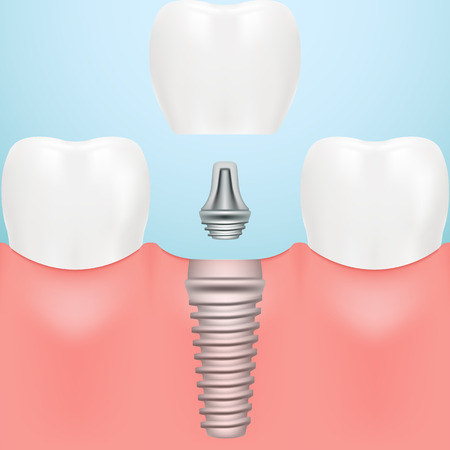 Tooth Human Implant. Dental Concept. Human Teeth Or Dentures Isolated On A Background. Vector Illustration. Stomatology. Creative Medical Concept