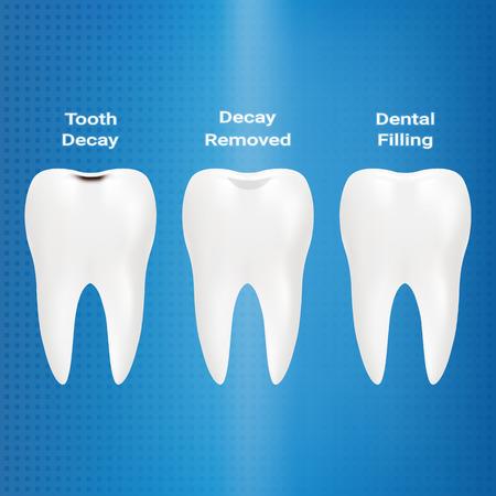 Trattamento delle carie. Riempimento Dentale Isolato Su Uno Sfondo. Illustrazione Vettoriale. Stomatologia. Denti E Denti Concetto Dental Archivio Fotografico - 83537515