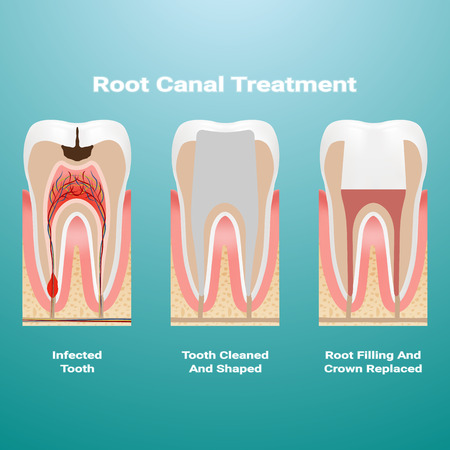 Pulpitis. Root Canal Therapy. Infected Pulp Is Removed From The Tooth And The Space Occupied By It Is Cleaned And Filled With A Gutta Percha Isolated On A Background. Vector Illustration. Stomatology. Teeth And Tooth Concept Of Dental