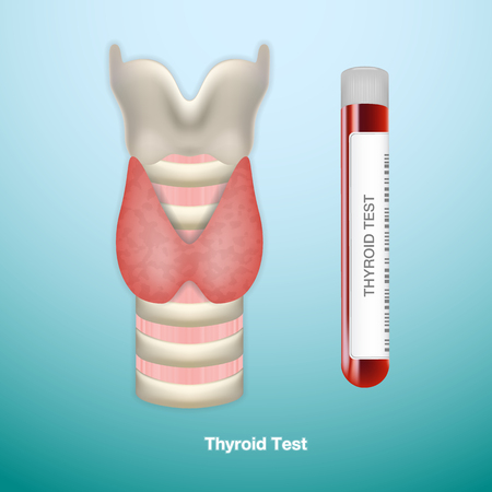 Test Tube With Blood For Thyroid Test And Healthy Thyroid. Endocrinology System Or Hormone Secretion.