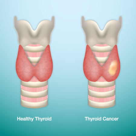 Healthy Thyroid and Thyroid Cancer. Vector Illustration.
