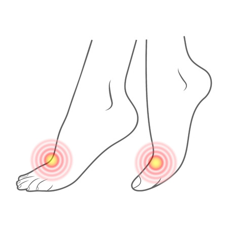 Human Foot Contour And Red Spots Of Pain. Ready Element For Medicine And Orthopedics Isolated On A White Background. Vector Illustration. Orthopedics, Organs Concept.