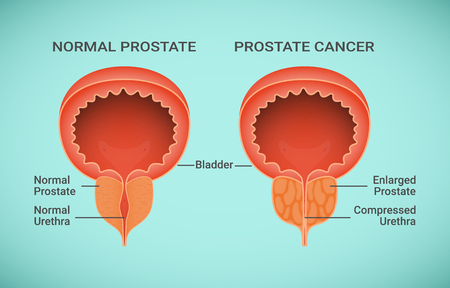 Comparison of Healthy and Cancer Prostate vector illustration