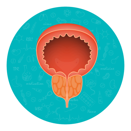 Acute prostatitis. Men s reproductive system disease. Medical vector illustration