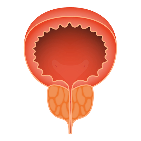 Acute prostatitis on white background. Men s reproductive system disease. Medical vector illustration, eps 10