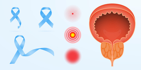 Prostate cancer color icon. Men s reproductive system disease. Male infertility and genital problem. Groin pain. Isolated vector illustration Stok Fotoğraf - 125519169