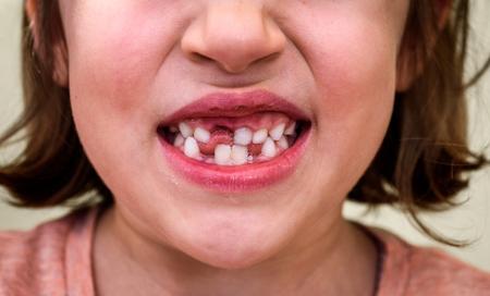 Porträt des zahnlosen Kindermädchens, dem Milch und bleibende Zähne fehlen. Nahaufnahme des jungen Kindes mit Zahnlücken und wachsenden bleibenden Zähnen und gesundem Zahnfleisch, das draußen in der Natur aufwirft.