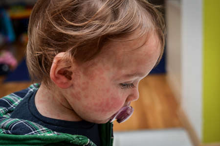 Children viral disease or allergies. Red measles rash on baby. Child with viral children disease infection. Concept of viral baby disease and vaccination. Imagens