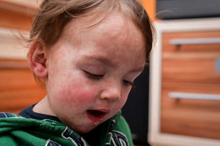 Children viral disease or allergies. Red measles rash on baby. Child with viral children disease infection. Concept of viral baby disease and vaccination. 写真素材