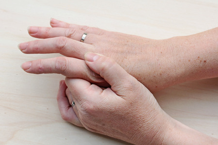 psoriasis: pain in hands Stock Photo