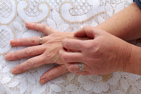 Dry itchy skin Standard-Bild