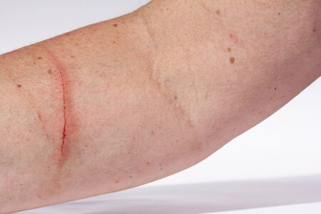 personal injury: A bloody injury on the arm of a woman
