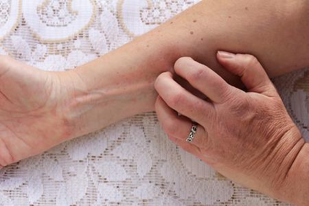 Picazón en la piel causada por la alergia o la piel seca. Una mujer tiene que erupción cutánea con picazón Foto de archivo