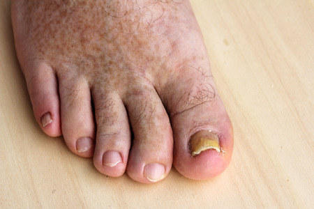 old man: Pathological changes in the feet - nail fungus on the toenails and skin spots