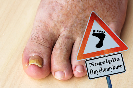 filamentous: An elderly man with nail fungus onychomycosis on toenail Stock Photo