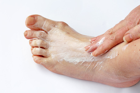 ointment: A woman rubbing her foot with a pain ointment. A woman spread cream on her foot