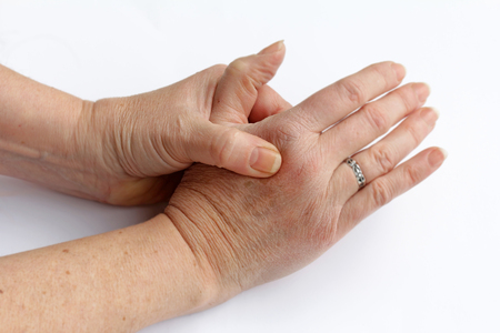 An elderly woman has pain in his hands