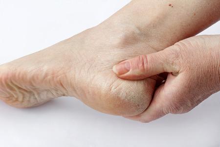 Een vrouw heeft een droge huid en eelt op de voeten Stockfoto